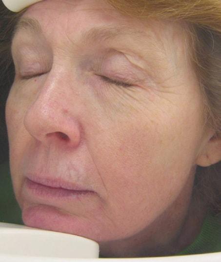 Before-Fractional Skin Resurfacing