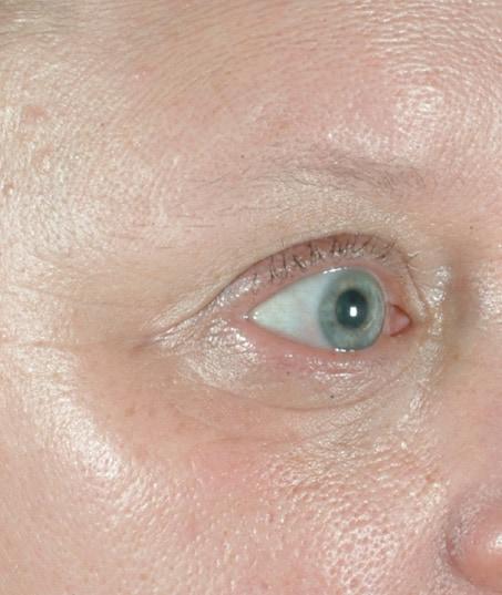 After-Fractional Skin Resurfacing