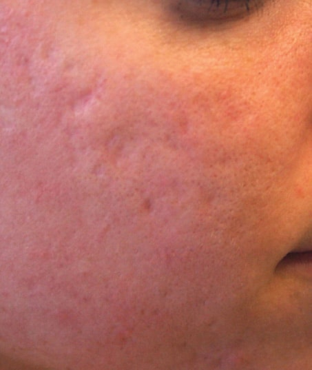 Before-Sublative Rejuvenation Acne Scarring