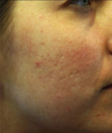 Before-Sublative Rejuvenation Acne Scarring