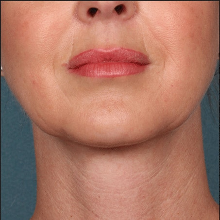 After- Kybella (Front Views)