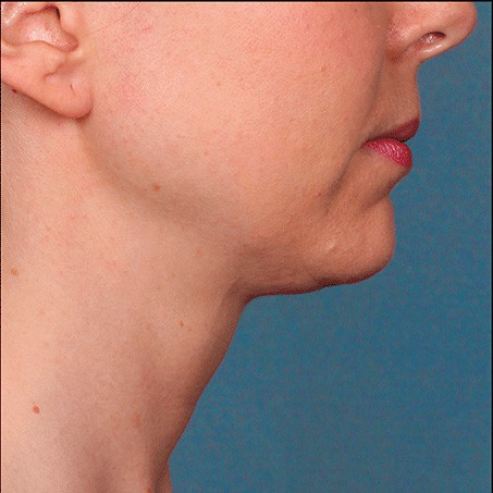 After- Kybella (Side Views)