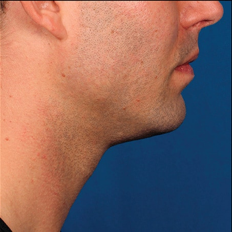 After-Kybella (Side Views)
