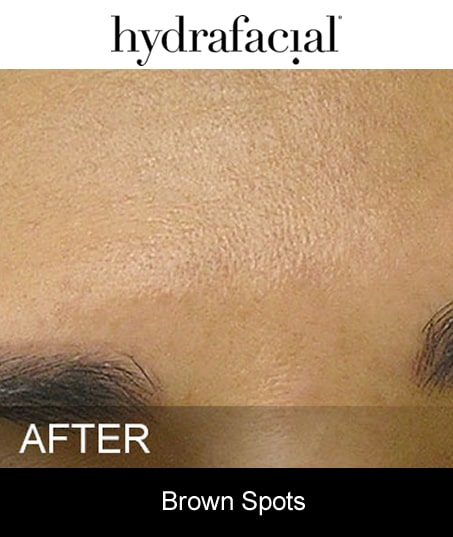 After-Hydrafacial - Brown Spots