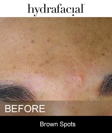 Before-Hydrafacial - Brown Spots
