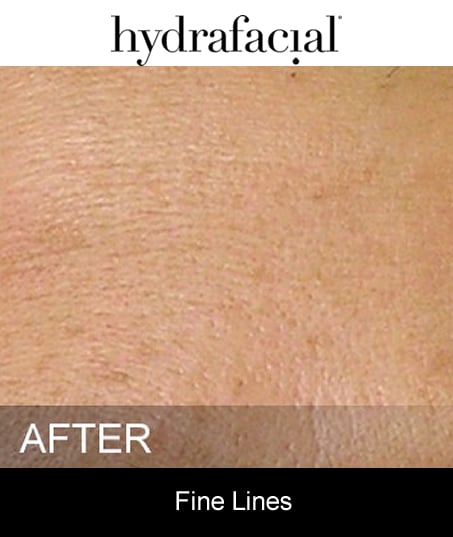 After-Hydrafacial - Fine Lines