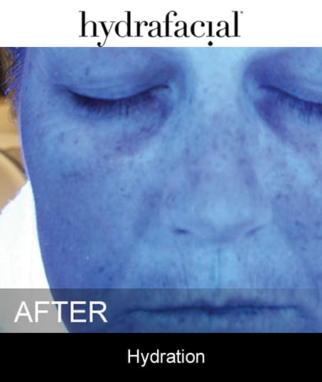 After-Hydrafacial - Hydration