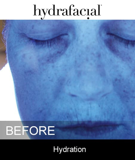 Before-Hydrafacial - Hydration