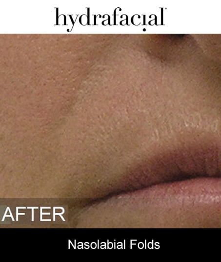 After-Hydrafacial - Nasolabial Folds