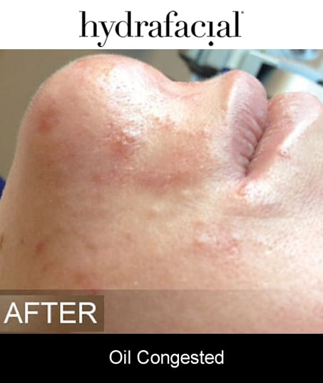 After-Hydrafacial - Oil Congested