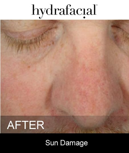 After-Hydrafacial - Sun Damage