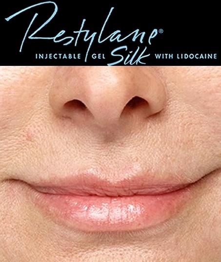 After-Restylane Silk
