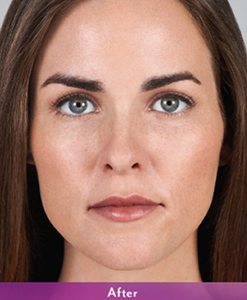 After-Juvederm Volbella Lip Injection